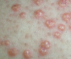 Xanthoma - Plaques or nodules composed of lipid laden histiocytes in the skin  - Sign of hyperlipidemia