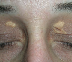 Xanthelasma - Plaques or nodules composed of lipid laden histiocytes in the skin - Especially common on the eyelids - Sign of hyperlipidemia