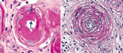 """- Hyaline - thickening of small arteries in essential HTN or DM) (left) - Hyperplastic - """"onion skinning"""" as seen in severe HTN (right)"""