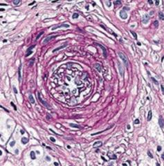 Hyperplastic Arteriolosclerosis