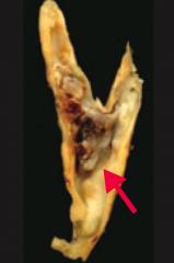 Abdominal aorta > Coronary artery > Popliteal artery > Carotid Artery (picture)