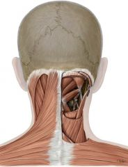 Made up of the Atlas and Axis and the muscles shown in the picture