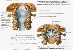 Ligament that is just deep to the tectorial membrane