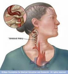 Cervical Vertigo, vertebral artery compression
