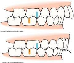 - Buccal groove of the mandibular first molar is distal to the mesiobuccal cust of the maxillary first molar by the with of a premolar - The distal surface of the mandibular canine is distal to the mesial surface of the maxillary canine by the wid...