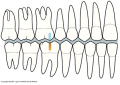 - Relationship between the molars and canines are similar to those in normal occlusion - The mal-relationship is improper positioning between individual teeth or groups of teeth * Examples: crowded anterior teeth, overbites, open bite, end to end ...