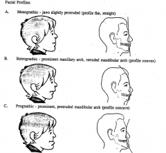 - Facial profile of normal occlusion or Class I malocclusion      - Facial profile of Class II malocclusion      - Facial profile of Class III malocclusion