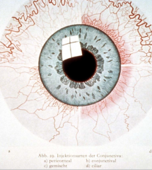 - Rötung des Auges (konjunktivale, gemischte oder perikorneale Injektion) - Fremdkörpergefühl - Lichtscheu - Vermehrte Sekretion (serös oder putride) - Jucken, Brennen - Chemosis (Konjunktiva-Ödem)
