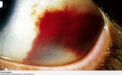 - meist harmlose, flächenhafte, rote Einblutung unter der Bindehaut. - Ausgelöst durch Traumata, Druckerhöhungen (Niesen, Pressen, schweres Tragen etc.), fragile Gefäße, Gerinnungsstörungen oder Blutdruckentgleisungen - bei rezidivierendem A...