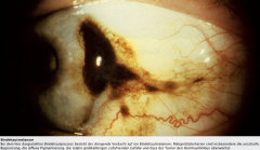 - seltener maligner Tumor - knotiger, pigmentierter Bindehauttumor, auf den Gefäße zulaufen - Entsteht meist aus einer Bindehautmelanose und selten de novo oder aus Bindehautnävi -  Exzision in toto