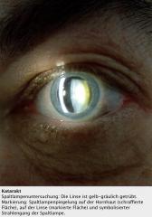 - Spaltlampe →Grau-gelblich-bräunliche Trübung  -Untersuchung im regredienten Licht → Trübungen erscheinen dunkel