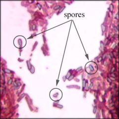 Bacillus or Clostridium