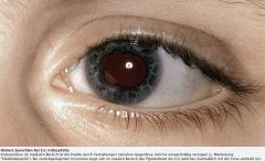 - Hintere Synechien (Verklebung von Iris und Linse) - vordere Synechien (Verklebung von Iris und Hornhaut) - Katarakt - Sekundärglaukom  - Bandförmige Hornhautdegeneration - Seclusio pupillae (Zirkuläre hintere Synechie) - Iris bombata (Napfkuc...