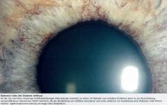 - Pathologische Neovaskularisationen der Iris - idR durch ischämische Erkrankungen der Netzhaut bedingt.