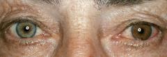 - Rechte und linke Iris besitzen unterschiedliche Farben   - Heterochromia simplex (kein Krankheitswert) - Heterochromia complicata Fuchs (Ätio unklar) - Heterochromia sympathica (einseitig abgeschwächte/fehlende sympathische Innervation) - Mela...