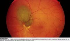 - Erhabener Tumor - Pigmentierung variabel (häufig bräunlich, auch amelanotische Formen möglich) - Begleitende seröse Netzhautablösung (auch tumorfern möglich) - Orangefarbenes Pigment (Lipofuszin und Melanin in Makrophagen)