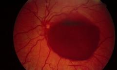 -Ophthalmoskopie: Abgegrenzte Blutung am hinteren Augenpol mit Spiegelbildung (Da die Blutung in einem abgegrenzten Raum ist, kann es zum Absinken der Erythrozyten und zur Spiegelbildung kommen)