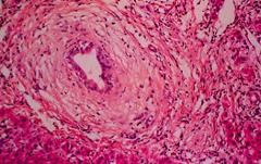 Onion skin pattern around bile ducts