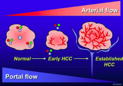 - Normal: blood flow is 70% from portal vein and 30% hepatic artery blood flow