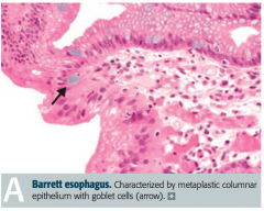 Glandular metaplasia: replacement of non-keratinized (stratified) squamous epithelium with intestinal epithelium (non-ciliated columnar with goblet cells) in distal esophagus