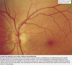 """- Bei Retrobulbärneuritis → Unauffälliger Ophthalmoskopiebefund  """"Patient sieht nichts (Zentralskotom), Arzt sieht nichts (normaler Fundusbefund)!""""  - Bei Papillitis → Unscharf begrenzte Papille, Hyperämie, Papillenrandblutungen"""