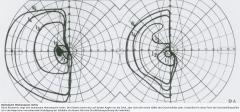 - Perimetrie - Bildgebung CT, MRT