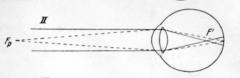 - Auge zu lang im Verhältnis zu seiner Brechkraft (axialer Bulbusdurchmesser zu lang oder erhöhte Brechkraft) → Brennpunkt liegt vor der Netzhaut