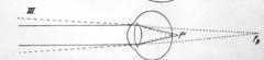 - Auge zu kurz im Verhältnis zu seiner Brechkraft (axialer Bulbusdurchmesser zu kurz oder verminderte Brechkraft) → Brennpunkt liegt hinter der Netzhaut