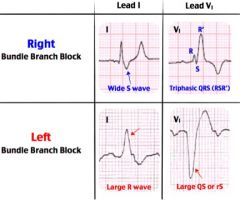 In left bundle branch block (A), lead I has a large R wave and in lead V1 there is a negative QS or rS complex.