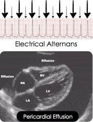 The electrocardiogram demonstrates electrical alternans, with alternating height and sometimes axis of the QRS complex due to the shifting heart inside the pericardial effusion. More commonly, the ECG demonstrates low voltage due to impaired condu...