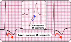 TRUE! 2 mm downslopping ST-segment depression is the most specific finding for myocardial ischemia during an exercise stress test. Subendocardial ischemia during exercise produces ST-segment depression or elevation or both. ST-segment depression t...