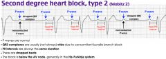 Second-degree heart block is defined by one or more impulses not reaching the ventricles and is classified as type I and type II. Type II second-degree heart block, also known as Mobitz II, is caused by an infranodal conduction abnormality, most c...