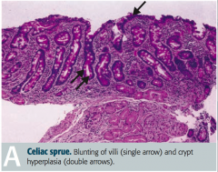 - Blunting of villi