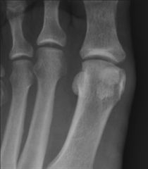 A 32-year-old female avid triathlete complains of left plantar great toe pain for the past 4 months. She has failed conservative management. Her radiographs and bone scan are shown in Figures A and B. Which of the following surgical options would ...
