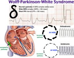 delta wave (a slurred upstroke to the QRS complex) is seen with Wolff-Parkinson-White.