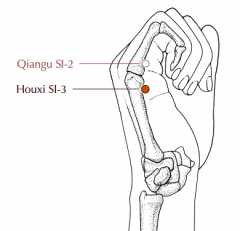 On the ulnar border of the hand, in the substantial depression proximal to the head of the fifth metacarpal bone.
