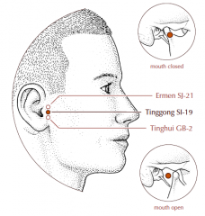 With the mouth open, this point is located in the depression between the middle of the tragus and the condyloid process of the mandible.