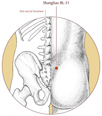 Over the first posterior sacral foramen.