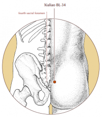 Over the fourth posterior sacral foramen.