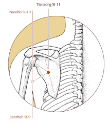 On the scapula, in a tender depression one third of the distance from the midpoint of the inferior border of the scapular spine to the inferior angle of the scapula.