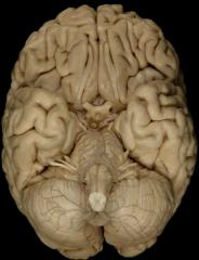 Cranial Nerves Olfactory Bulbs