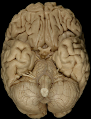 Cranial Nerves Trochlear