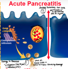 How does the acinar cell secrete enzymes with acute pancreatitis?