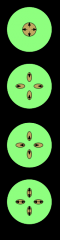 xylem in brown; arrows show direction of development from protoxylem to metaxylem.protoxylem is usually distinguished by narrower vessels formed of smaller cells.