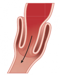 Intussusception - commonly at ileocecal junction