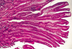 What does this histology show?