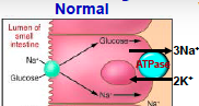 1. Na co-transport with organic molecules  2. Couple Na-Cl absorption  3. Simple diffusion (Na channels)
