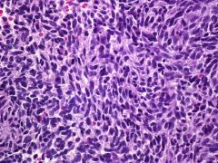 MPNST -Must arise from nerve, PNST, or in NF1 patient - Increased cellularity, fascicular growth, mitoses  Must r/o DESMOPLASTIC MELANOMA!  How?