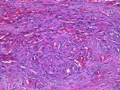 Kaposi sarcoma  AIDS, HHV8 Spindle cell fascicles EXTRAVASATED RBCs PAS+ HYALINE GLOBULES