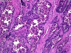 """Alveolar rhabdomyosarcoma  """"A""""wful px  Extremities, H&N (GU rare)  Mets to Lung > LN > BONE > brain  cellular clusters with fibrous septae  Genetics?"""